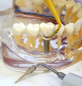 Abb. 1: Anwendung der Zantomed PA-Sonde am Modell und Ansatz für maschinelles Debride ment am Implantat.