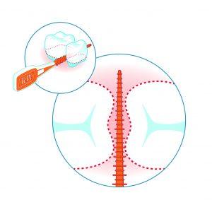 Durch die lange, konische Reinigungsfläche kann der TePe EasyPick™ für die Reinigung unterschiedlich großer Interdentalräume verwendet werden.
