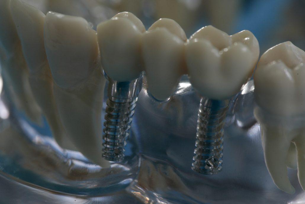 """Der Kieferknochen spielt eine entscheidende Rolle bei der Implantation: Denn, wenn nicht genügend Knochensubstanz vorhanden ist, kann die künstliche Zahnwurzel nicht fest verankert werden. Altersbedingter Knochenschwund (Osteoporose) spricht allerdings nicht grundsätzlich gegen eine Implantation. Hat sich der Knochen bereits zurückgebildet - beispielsweise durch das langfristige Tragen einer herausnehmbaren Prothese, kann der Zahnarzt den Kieferknochen sogar wieder aufbauen. Dazu eignet sich neben Knochenersatzmaterial besonders gut körpereigener Knochen, der in kleineren Mengen in einem ambulanten Eingriff aus dem benachbarten Kieferknochen oder aus dem Kinn entnommen werden kann.     Die Verwendung dieses Bildes ist nur für redaktionelle Zwecke und ausschließlich in Bezug auf das Thema Zahnmedizin gestattet. Die Bearbeitung des Bildes ist nicht erlaubt, mit Ausnahme der Verkleinerung oder Vergrößerung sowie der technischen Aufbereitung zum Zweck der optimalen Vervielfältigung. Die Weitergabe dieses Bildes an Dritte und insbesondere der honorarpflichtige Vertrieb/die Speicherung in Bilddatenbanken ist untersagt. Der Abdruck ist ausschließlich unter Nennung der Quellenangabe: """"proDente e.V."""" honorarfrei.     Eine reprofähige jpg-Datei ist unter www.prodente.de im Pressezentrum abrufbar.    Erzeugt mit Caption Writer II."""