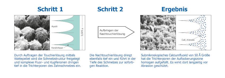 Drei Schritte der Tiefenfluoridierung