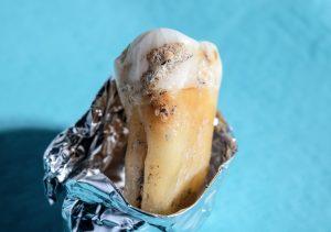 Nahaufnahme von Zahnstein auf einem alten menschlichen Zahn.