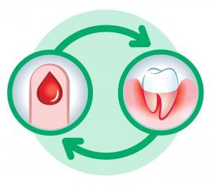 Professionelle Zahnpflege für Diabetiker